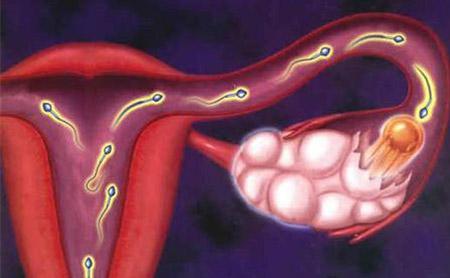 女性输卵管堵塞的症状有哪些?
